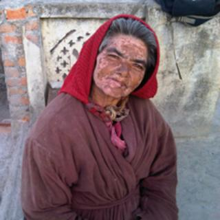 A resident of the charity home in Kathmandu