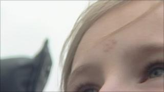 Mark on child's forehead