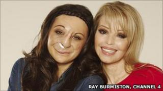 Chantelle Richardson with Katie Piper - who she is appearing with in a documentary called Katie: My Beautiful Friends