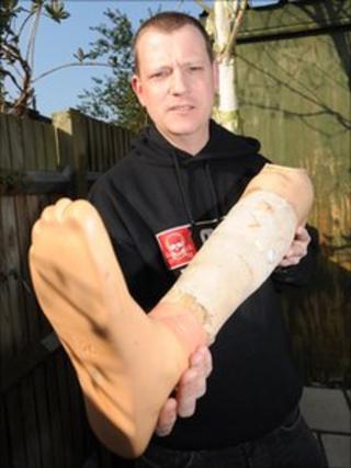 Stuart Hughes and his original prosthetic leg
