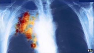 Cancerous cells in chest x-ray