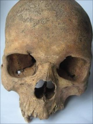 Skull discovered in Warwickshire