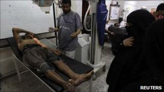 A protester injured in clashes on Saturday night in Sanaa is treated in hospital, 10 April