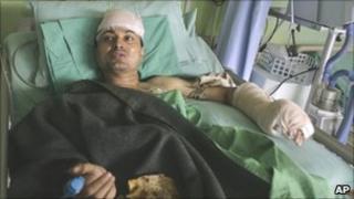 Gokarna Bista in hospital