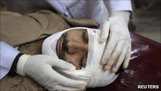 Injured suicide bomb victim in Pakistan (April 2011)
