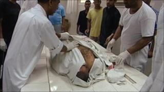 Body of Bahraini who died in police custody