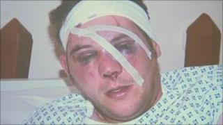 Peter Cox shortly after the attack