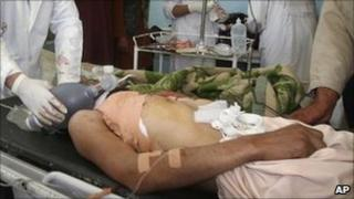 An Afghan policeman is treated by doctors after being wounded in a gunfight with militants in Ghazni - 1 May 2011