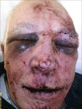 Swindon assault victim