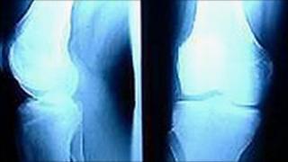Knee x-ray (generic)