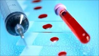 Test tube and syringe