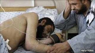 An Afghan man attends to his wounded brother at a hospital after a roadside bomb blast in Panjwai district of Kandahar May 24, 2011.