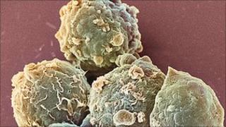 Blood cancer cells