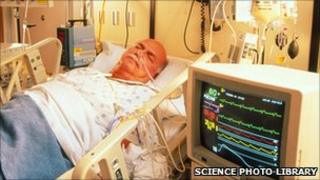 Patient in cardiac intensive care - file photo