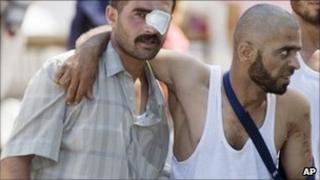 Wounded Syrian refugees help each other as they head toward an ambulance in a camp in the Turkish town of Yayladagi on 22 June 2011