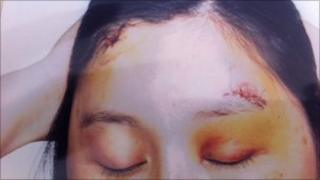 Cuts and bruises suffered by Chinese immigrants in Paris, France
