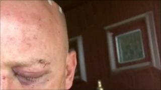 The man's black eye after being attacked