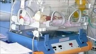 Premature baby at Buscot Ward