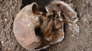 The skull of Julia Martha Thomas, found in Richmond last October