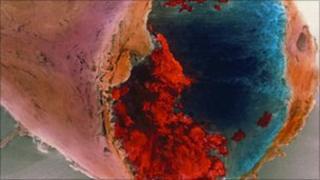 Blood clot in a coronary artery