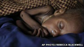 A young Somali child being treated for severe malnutrition