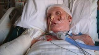 Gordon Metcalf in hospital after the fire
