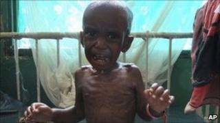 Ali Omar, a three-year-old malnourished child from southern Somalia, at Bandar hospital, Mogadishu, Somalia - 26 July 2011
