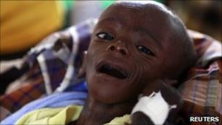 Minhaj Gedi Farahi undergoes treatment at the Dadaab refugee camp, Kenya