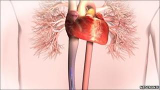 Heart procedure