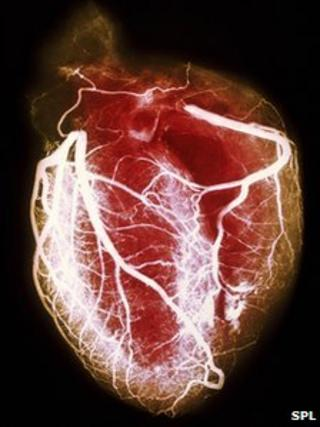 Arteriogram of arteries of healthy heart