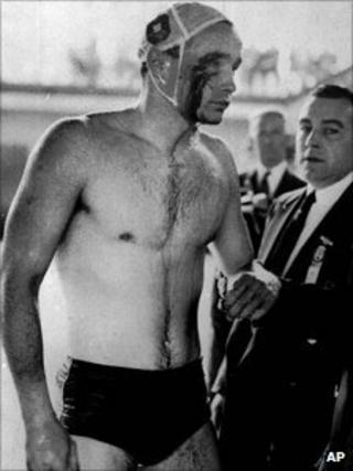 Blood streams from the cut eye of Hungarian Ervin Zador injured during a fight with a Russian in the closing stages of the Hungary vs. Russia water polo match in Melbourne, Australia December 6, 1965