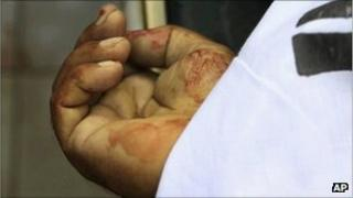 A body of a target killing victim lies in a mortuary in Karachi on Monday, 22 August, 2011