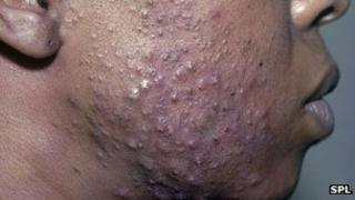 Acne on a man's cheek