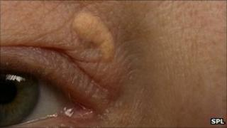Yellow plaque on the eyelid