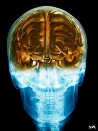 3D MRI image