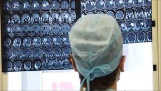 Un médico examina imágenes de resonancia magnética.