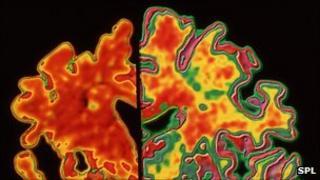 Alzheimer's brain (left) and normal brain
