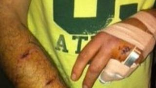Dean Barr's injuries after being attacked by Alsatian dog
