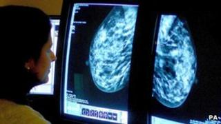 A consultant analysing a mammogram as she checks for breast cancer