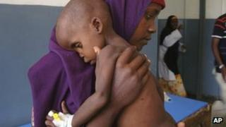A malnourished child carried by his mother in a Mogadishu hospital, Somalia