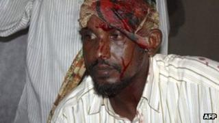 A member of Somalia parliament injured in a brawl on Wednesday 4 January