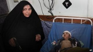 Five-year-old boy injured in Baghdad's attack and his mother