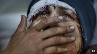 An injured woman at a hospital in Idlib, Syria (10 March 2012)