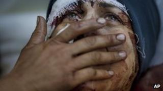 Injured woman cries as she recovers from injuries on 10 March 2012 after her house in Idlib, north Syria, is shelled