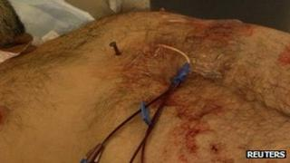 A nail is shown in the chest of of Dennis Hennis 6 April 2012