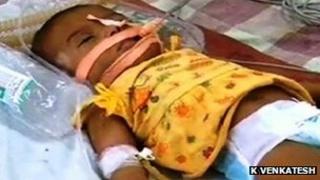 Baby Afreen (Photo: K Venkatesh)