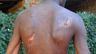 Zimbabwean victim of torture