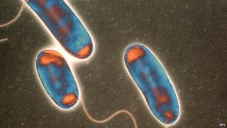 Legionnaires' bacteria