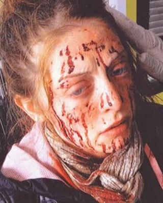 Southend mugging victim Leanne