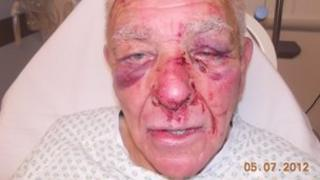 Pensioner attacked